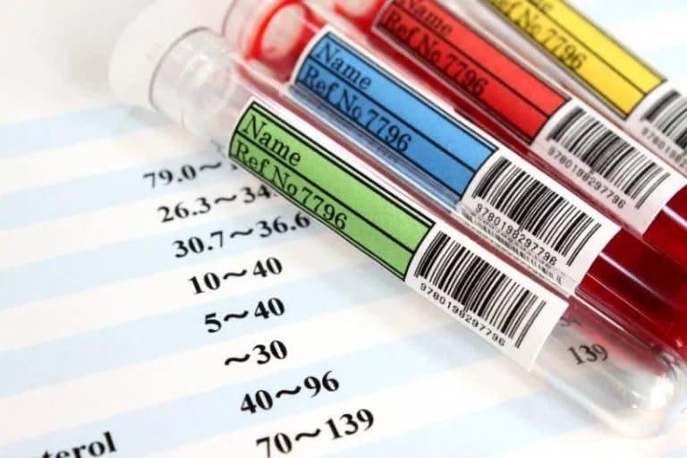 Биохимический анализ крови и алкоголь